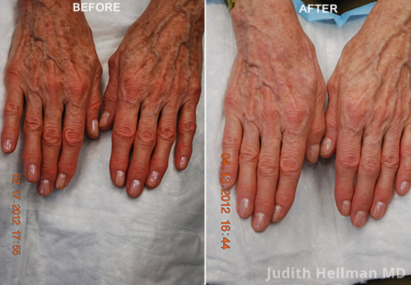 Female hand, before and after Fotofacial RF laser treatment. Hands - patient 9