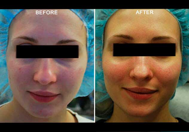 Fractora RF Microneedling | Before & After Photos: Female (frontal view)