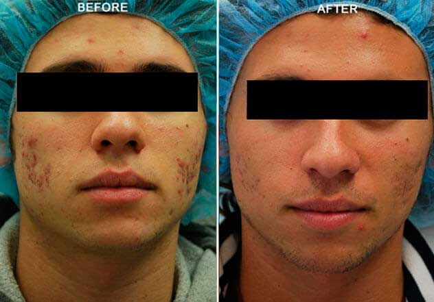 Forma RF Skin Tightening: Before and After Photos: Male, frontal view