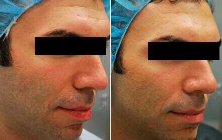 Fractora before and after photo
