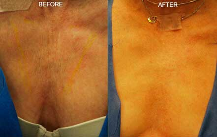 Woman's breasts, before and after Fractora radio refrequency treatment. Breast, front view - patient 2