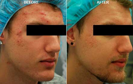 Male face, before and after Fractora radio refrequency treatment. Face, forehead, right cheek - patient 4