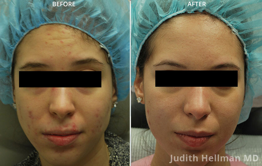 Young woman's face, before and after Fractora radio refrequency treatment. Face, forehead, cheeks, lips front view - patient 2