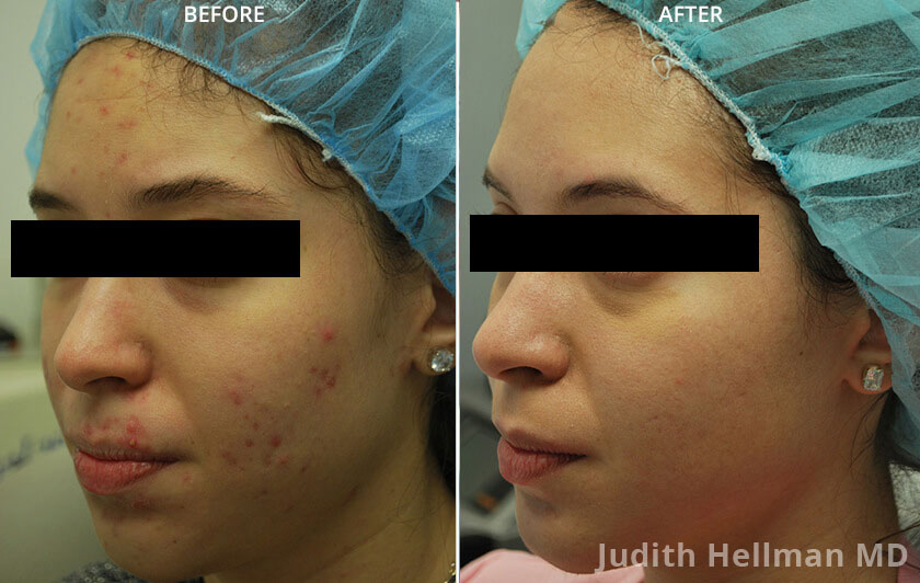 Young woman's face, before and after Fractora radio refrequency treatment. Face, forehead, left cheek - patient 2