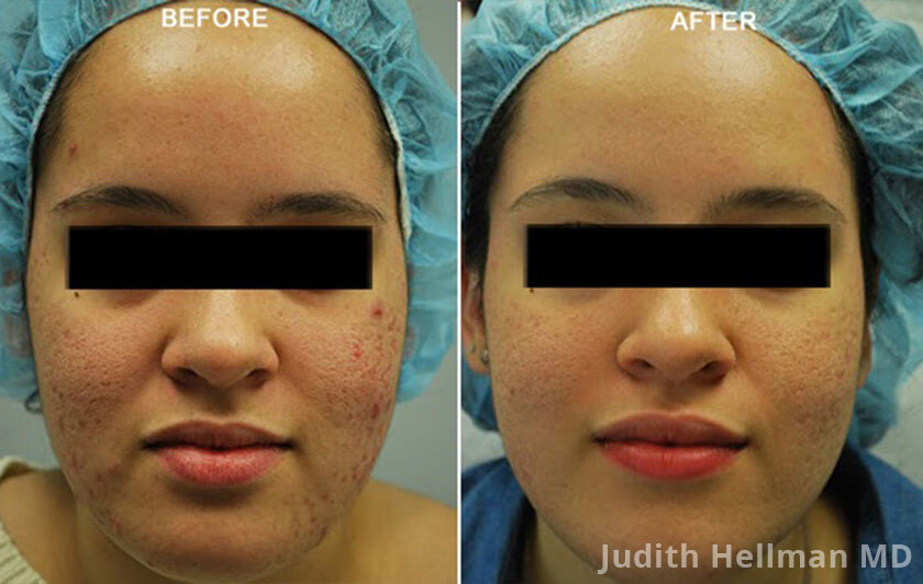 Young woman's face, before and after Fractora radio refrequency treatment. Face, forehead, cheeks front view - patient 3