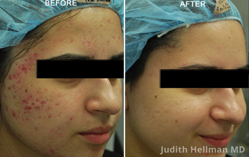 Young woman's face, before and after Fractora radio refrequency treatment. Face, forehead, right cheek - patient 8