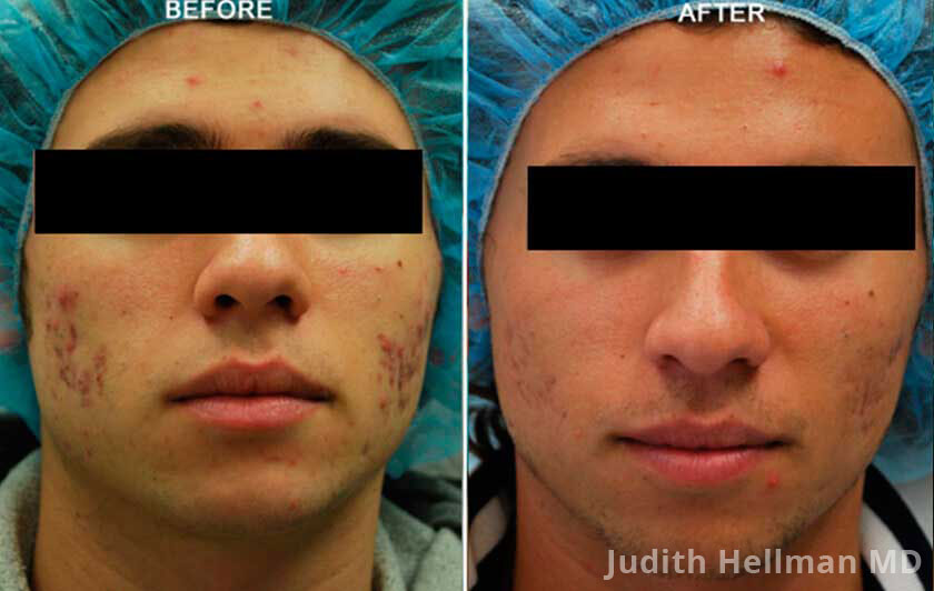 Male face, before and after Fractora radio refrequency treatment. Face, forehead, cheeks - patient 6