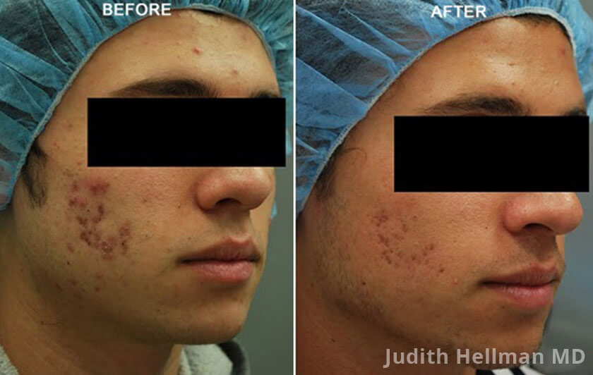 Male face, before and after Fractora radio refrequency treatment. Face, forehead, right cheek - patient 6