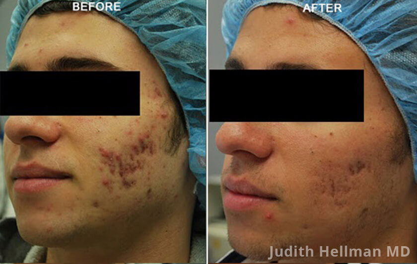 Male face, before and after Fractora radio refrequency treatment. Face, forehead, left cheek - patient 6