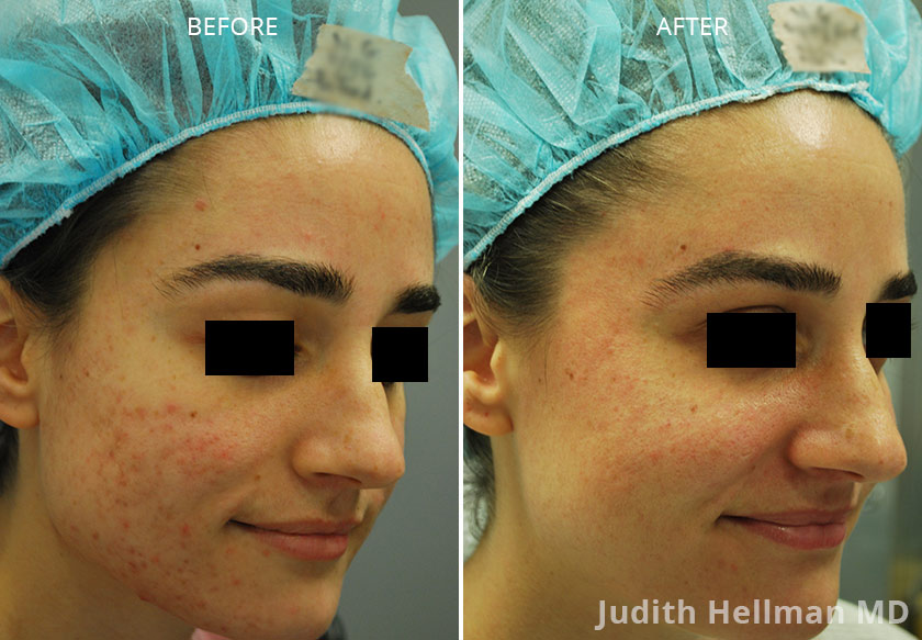 Young woman's face, before and after Fractora radio refrequency treatment. Face, forehead, left cheek - patient 1