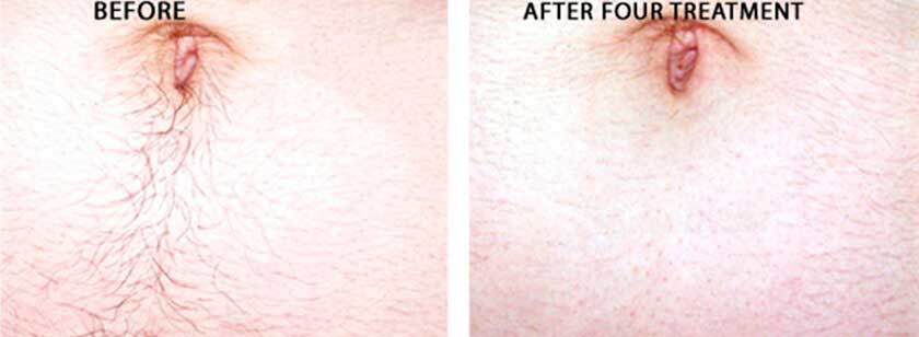 Laser Hair Removal: Before and After Photos - patient (tummy)