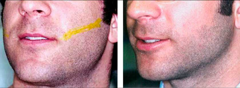 Laser Hair Removal: Before and After Photos - Male patient (face)