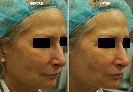 BOTOX & JUVEDERM BEFORE & AFTER Treatment PHOTOS - Female (patient 1; frontal view)