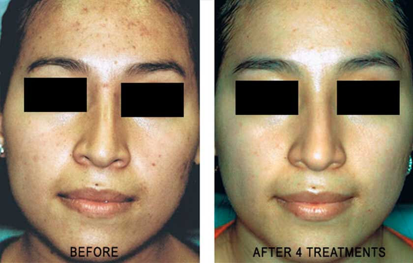 Laser for Acne: Before and After Treatment Photos - Female patient (frontal view)