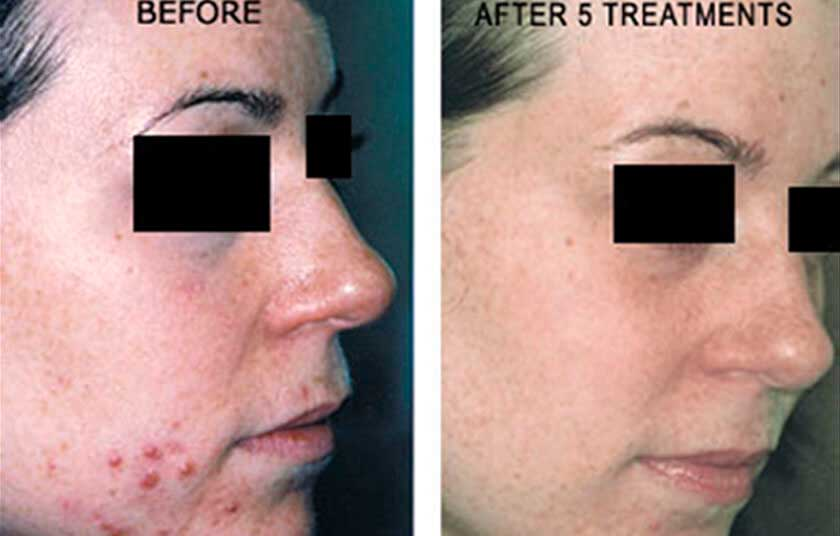 Laser for Acne: Before and After Treatment Photos - Woman patient (right side, oblique view)