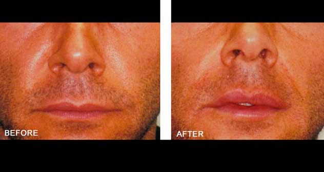 Lip Enhancement: Before and After Treatment Photos - Male (frontal view)