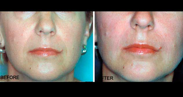 Lip Enhancement: Before and After Treatment Photos - Female (frontal view)
