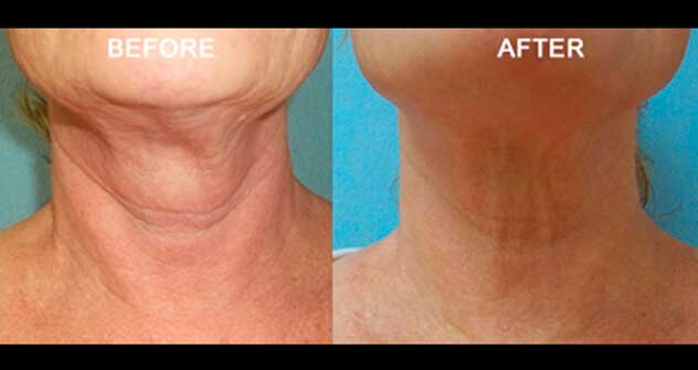 Non-surgical Neck Lift - Before and After Photos: Female (neck, frontal view)