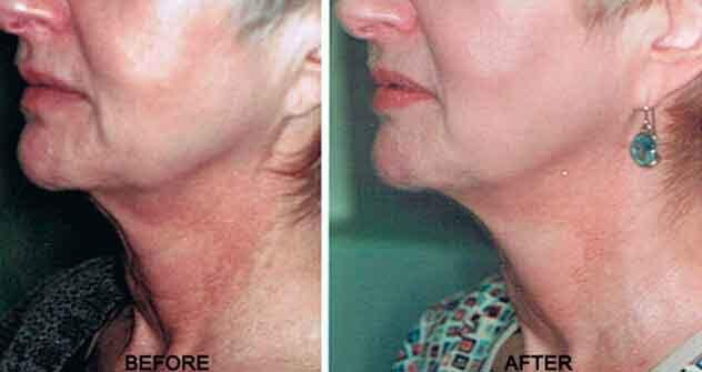 Non-surgical Neck Lift - Before and After Photos: Female (neck, left side view)