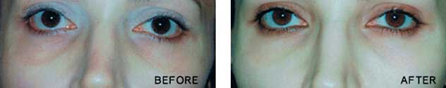 Non-Surgical Under Eye Bag Removal - Before Photo