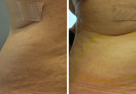 Female patient, before and after non surgical fat reduction treatment. Back view - patient 6