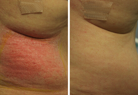 Female patient, before and after non surgical fat reduction treatment. Back view - patient 7