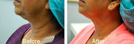 Old female neck, before and after non-surgical necklift treatment. Neck. Patient 3 (left side view)