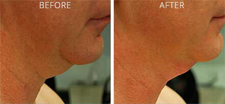 Old female neck, before and after non-surgical necklift treatment. Neck. Patient 4 (right side view)