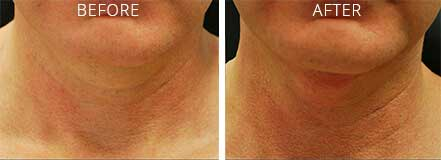 NON-SURGICAL NECKLIFT - BEFORE & AFTER PHOTOS: Woman (frontal view)