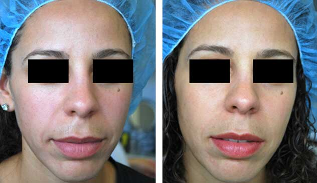 Restylane® and Perlane® - Before & After Photos - Female patient