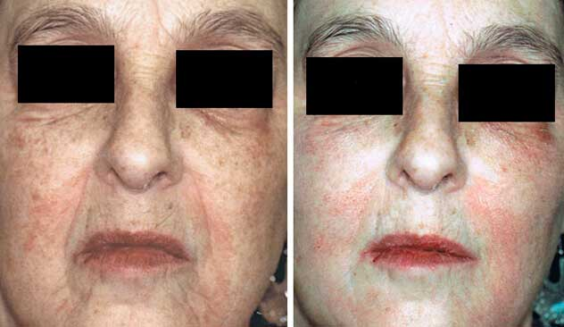 Restylane® and Perlane® - Before & After Photos - Woman