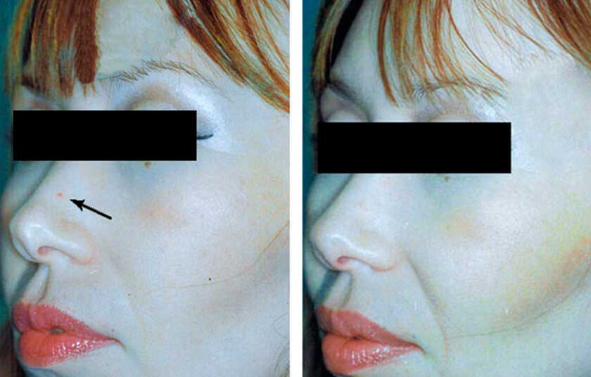 Pulse Dye Laser For Rosacea|Before & After Photos - Female