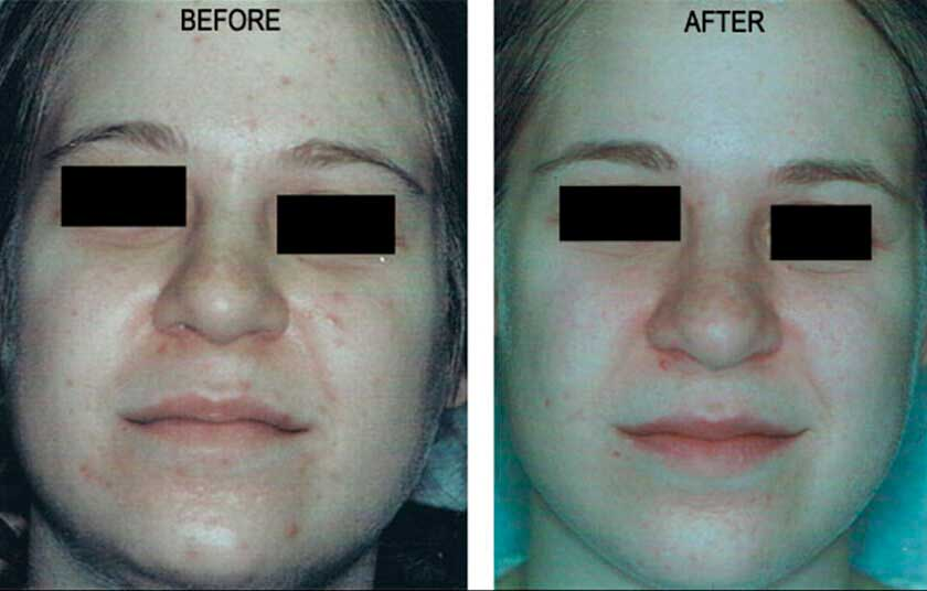 Laser for Acne: Before and After Treatment Photos - Woman patient (frontal view)