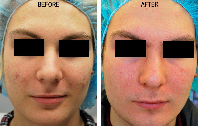 Pulse Dye Laser For Rosacea|Before & After Photos - Male