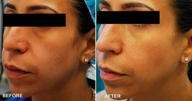 Radiesse®|Before & After Photos - Female - oblique view