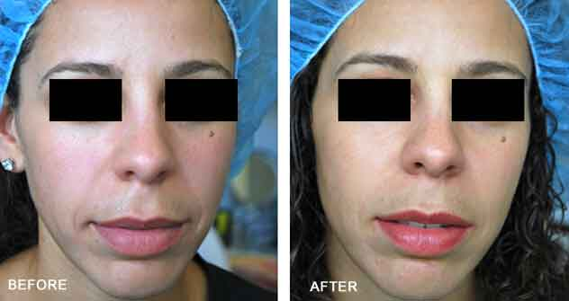 Radiesse®|Before & After Photos - Female - frontal view