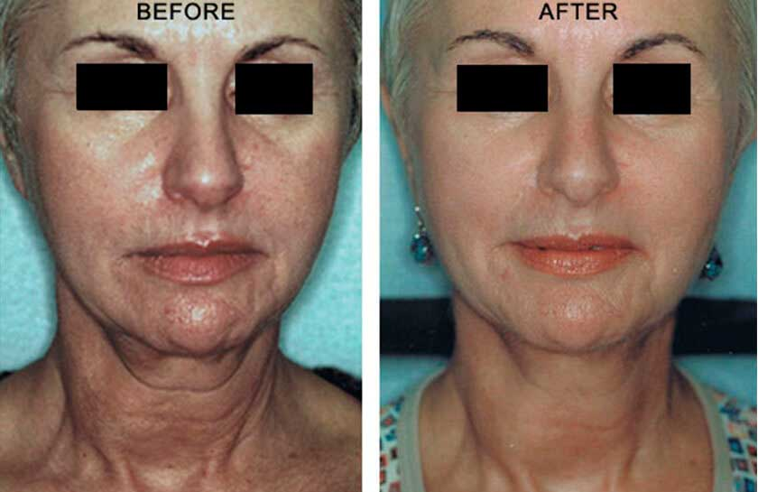 RefirmeTM ST - Before & After Photos - Female, frontal view