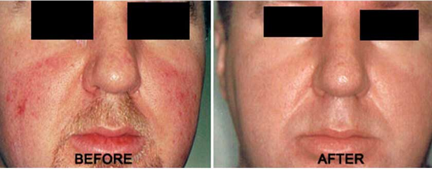 Rosacea and Facial Veins - Before & After Photos - Male, frontal view
