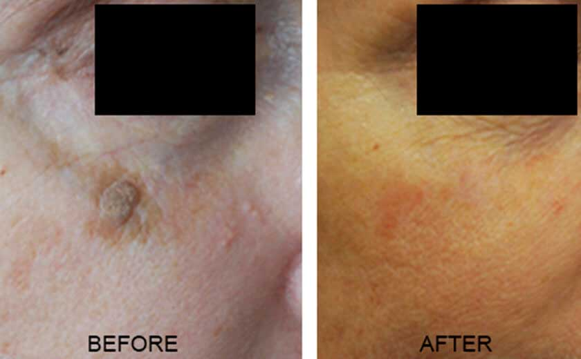 Skin Tags And Other Benign Moles - Before and After Photos - Patient 2