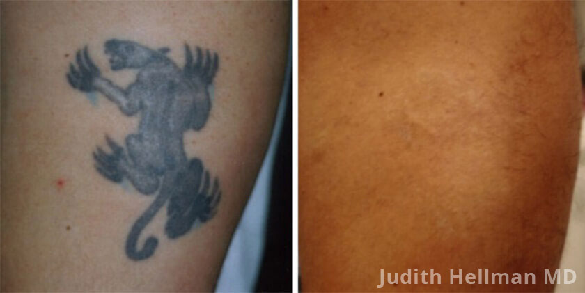 Tattoo Removal With The Naturalase Qs - Before and After photo, patient 1