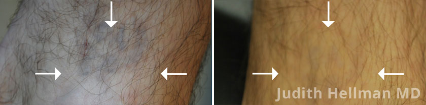 Tattoo Removal With The Naturalase Qs - Before and After photos - patient 1