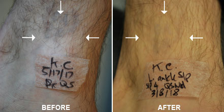 TATTOO REMOVAL BEFORE And AFTER PHOTOS: Patient 1