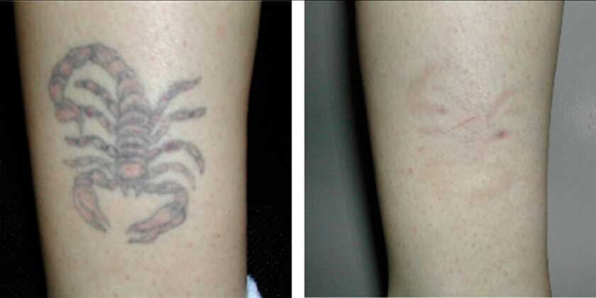 Tattoo Removal With The Naturalase Qs - Before and After photos - patient 2