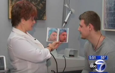 Watch Video: Dr. Hellman featured on ABC News discussing laser acne treatment Fractora