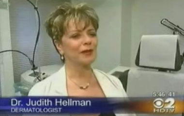 Watch Video: Dr. Hellman featured on CBS News speaking about Laser for Acne Treatments